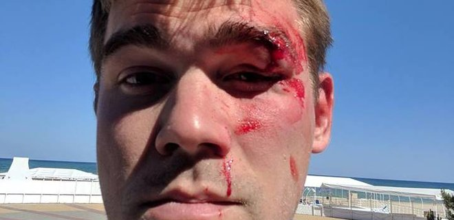 CEO Stylus Андрей Карпюк разбил клиенту бровь из-за Amazon Kindle - Фото
